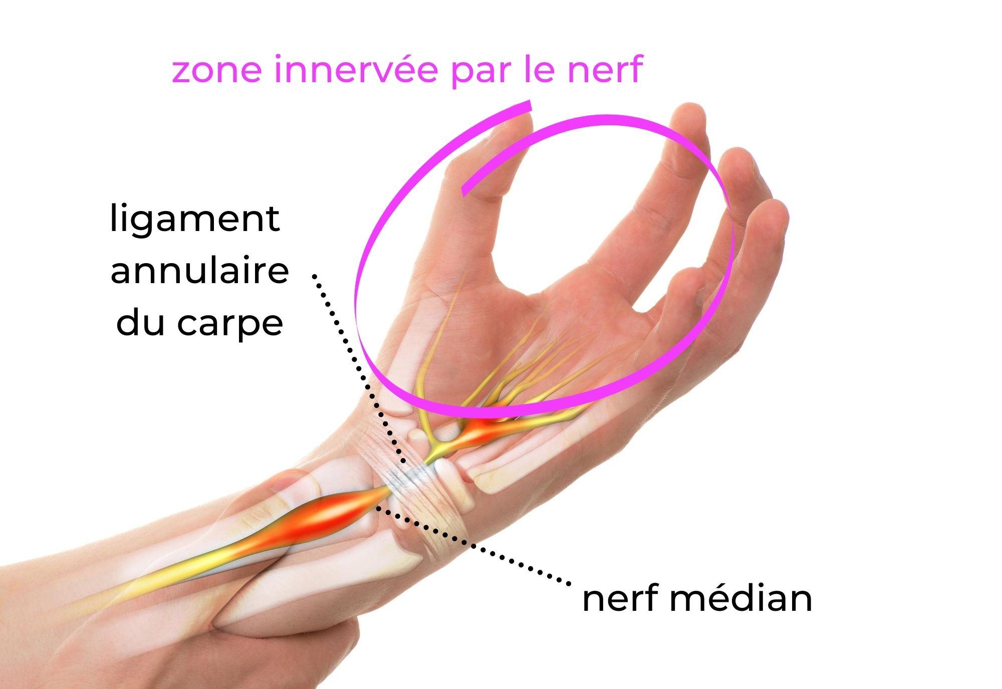 Syndrome du canal carpien - descrption